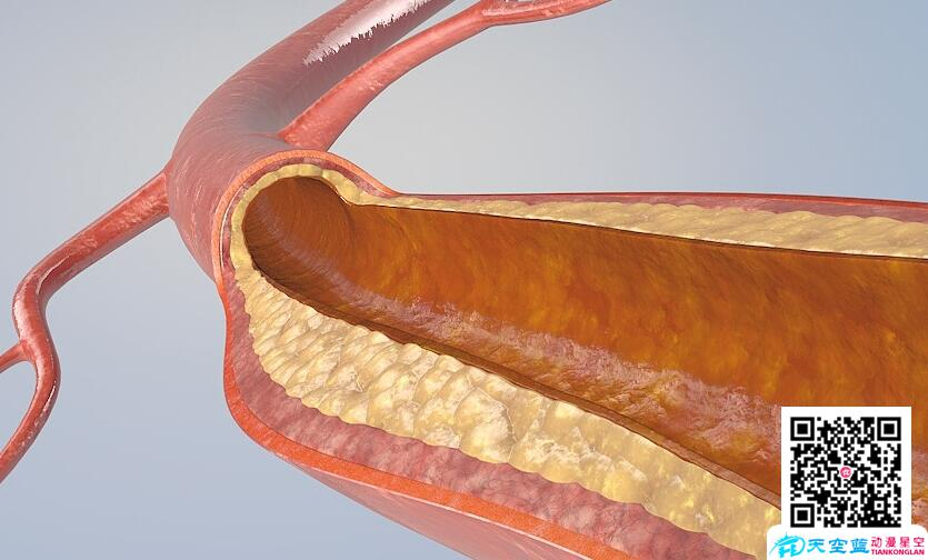 心脏手术动画:医疗手术3d动画制作、医学演示动画制作