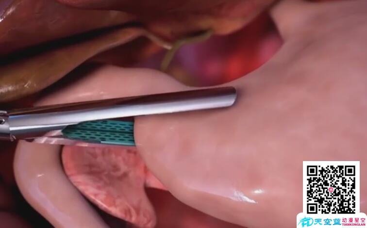 武汉三维医疗器械手术动画视频还原