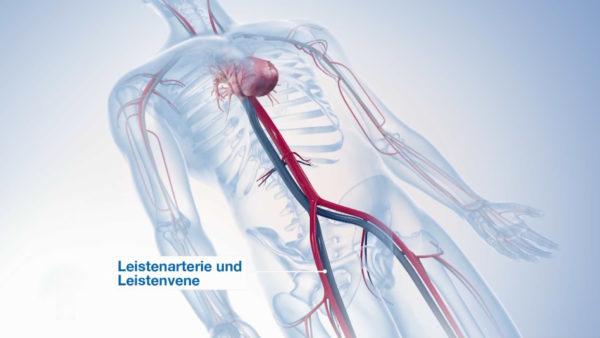 医疗教学手术三维3D动画演示视频制作多少钱? 动画制作 第3张