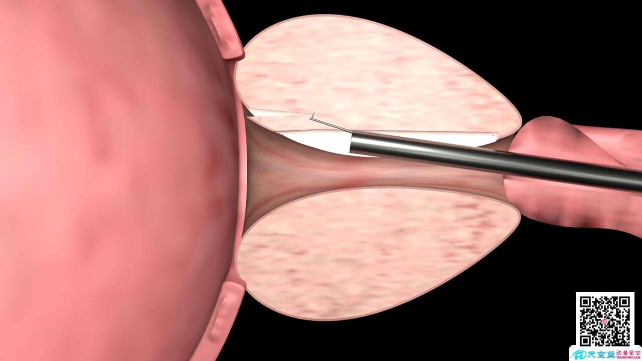 三维动画制作《前列腺增生电切手术演示》3d手术动漫宣传片