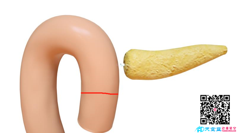 《胰头十二指肠切除术》三维医学手术动画制作