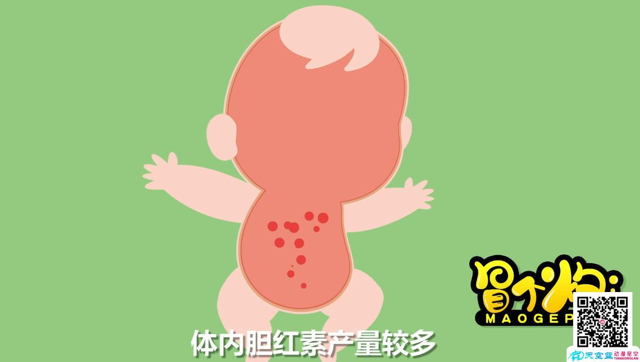 新生儿体内胆红素.jpg