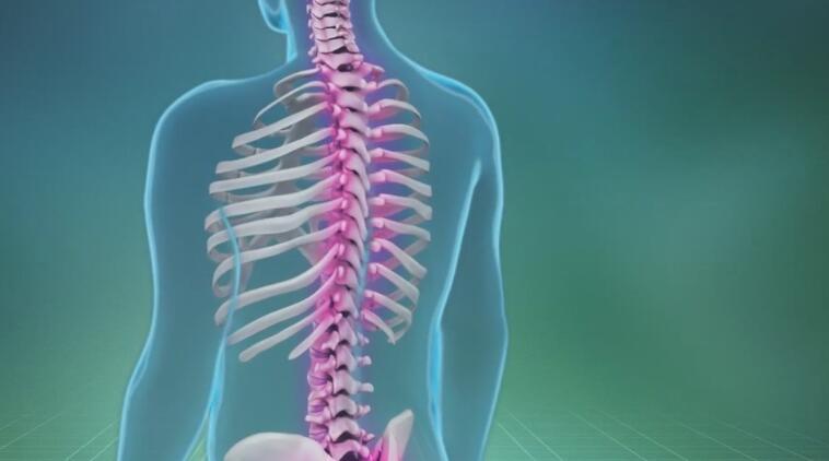 「动画制作」脊椎脊柱手术医疗演示动画制作
