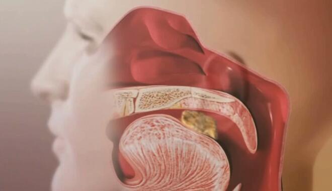 「动画制作」医学3d动画制作视频模拟人体系统