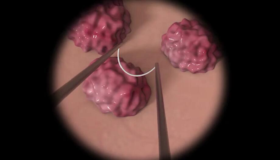 什么是膀胱肿瘤.jpg