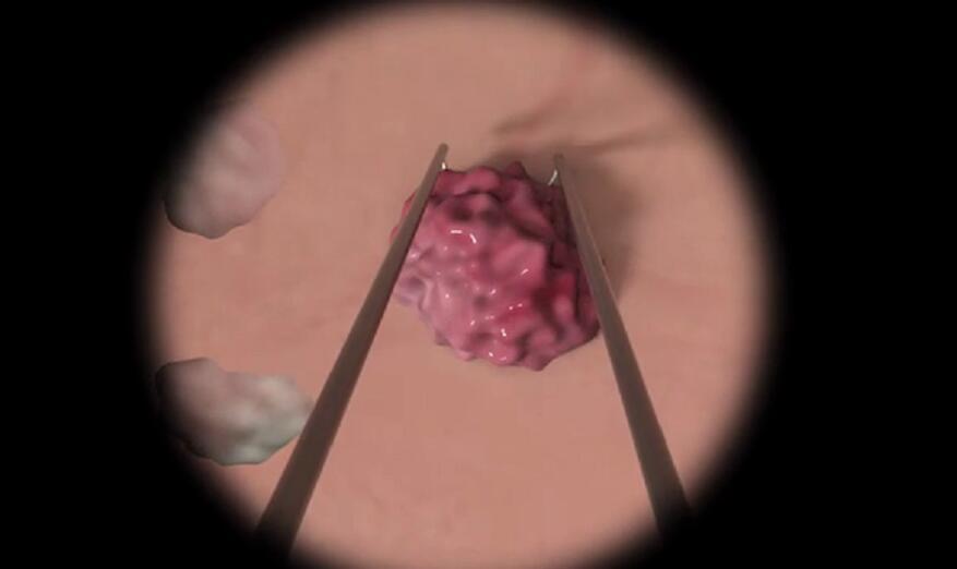 膀胱肿瘤的症状.jpg