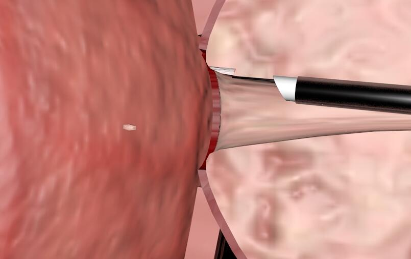 三维医疗手术动画制作『前列腺增生』剖面演示