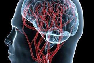 动画制作『如何预防脑血管病?』健康知识mg动画科普