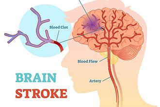 动画制作『如何预防并远离脑卒中?』健康知识mg动画科普
