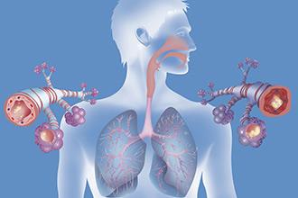 什么是慢阻肺,慢阻肺的常见病因有哪些?