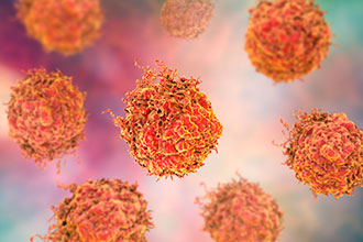 什么是前列腺癌,前列腺癌与前列腺炎、前列腺增生有关联吗?