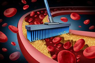 什么是坏胆固醇,如何将坏胆固醇控制在最低值?