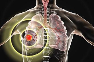 肺癌科普动画制作