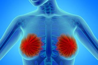 如何尽早发现早期乳腺癌?乳腺癌应该如何预防?