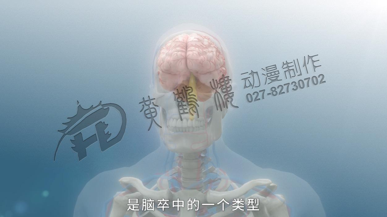 《缺血性脑卒中》三维医疗科普动画宣传片.jpg