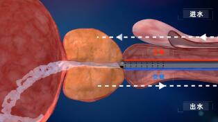 武汉三维医学医疗动画宣传片制作《经尿道前列腺切除术-手自一体控压输注泵》 医疗手术动画视频演示